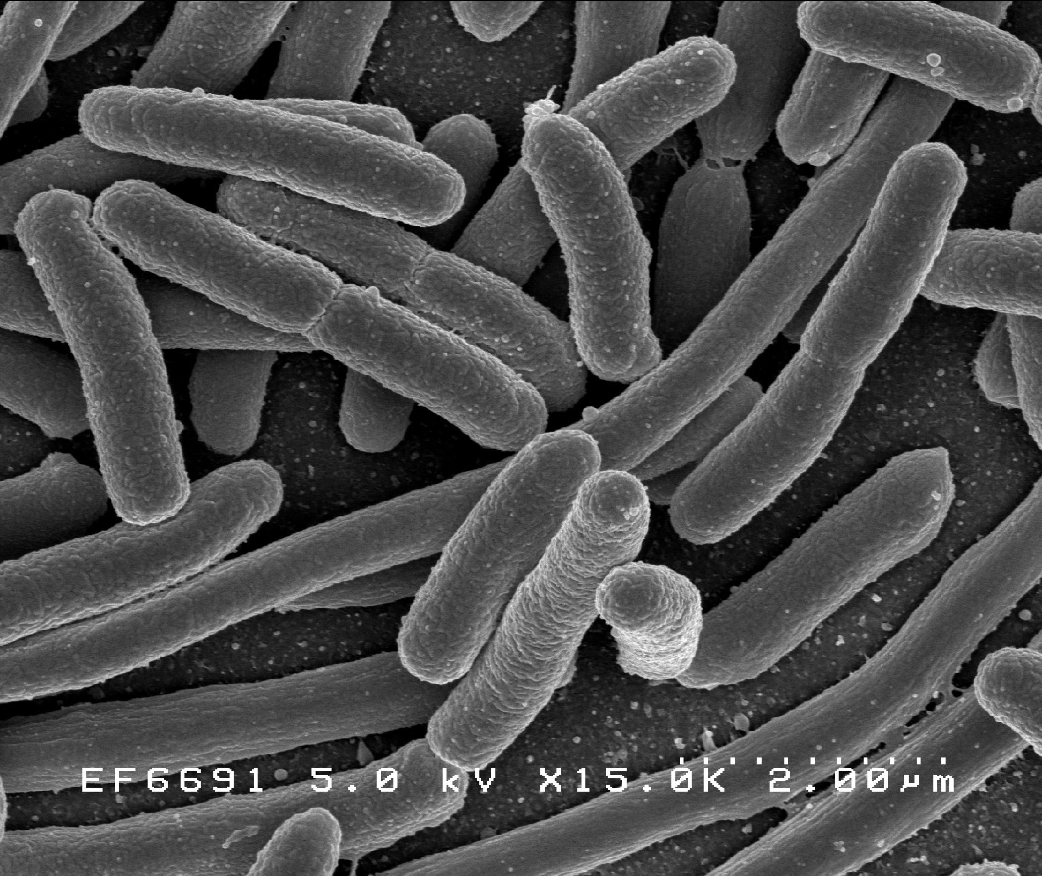 e_coli.jpg