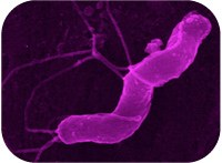 Novel bacterial strategy to cope with host defenses uncovered
